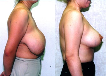 breast reduction  before 302684