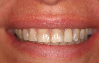 Porcelain Veneers Smile Makeover before 164361