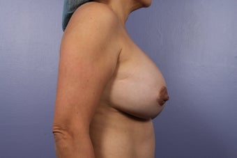 Breast Implants after 302550