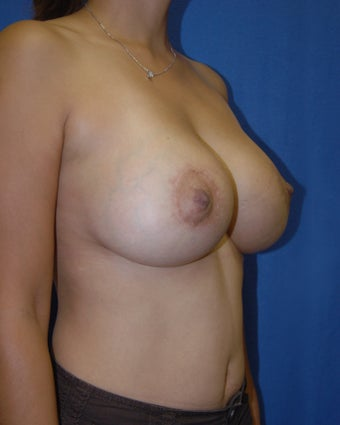 Breast Augmentation Style 410