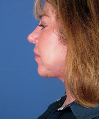 Chin Implant after 550579