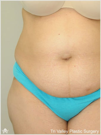 Liposuction before 420931