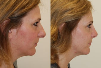 Rhinoplasty Surgery. 2 months post-op. before 526360