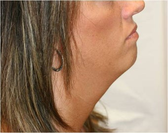 SmartLipo of Neck - Right Lateral View  before 109277