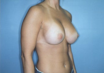 Breast Augmentation with High Profile Saline Implants after 261534