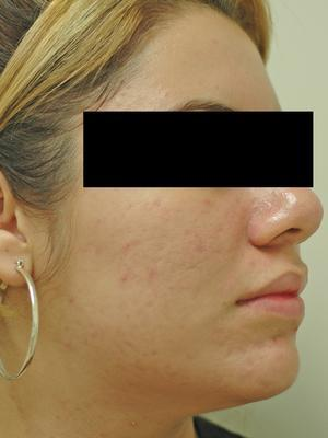 Laser Acne Treatment after 82949