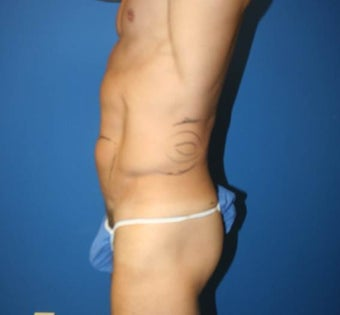 High-Definition Liposuction 402412