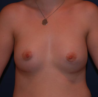 Reconstruction of Tubular Breast Deformity after 555981