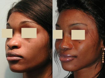 African American Rhinoplasty before 135818