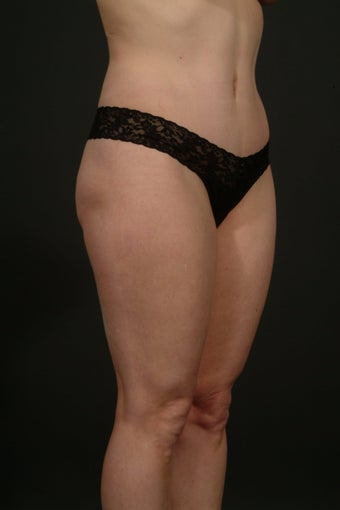 Tummy tuck with hip liposuction after 163042