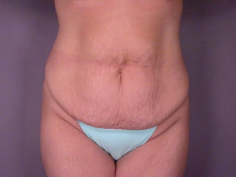 Tummy Tuck before 325615