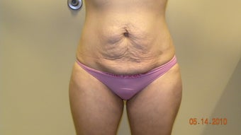 Abdominoplasty before 402704