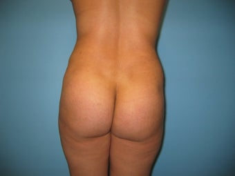 Buttock augmentation (Brazilian buttock lift) after 287962