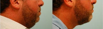Chin Implant (Alloplastic Chin Augmentation) before 136402