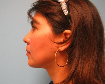 liposuction of chin after 284104