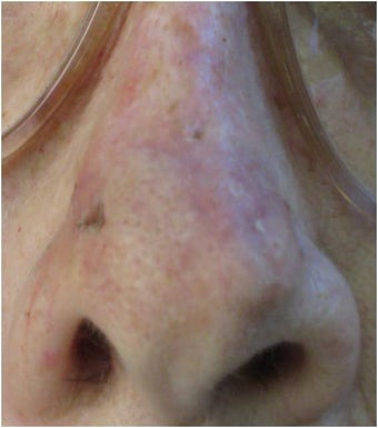 Mohs surgery defect of dorsum of the nose after 82513