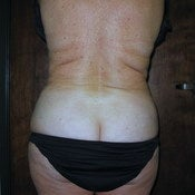 Liposuction Hips, Waist, and Bra Rolls after 203967