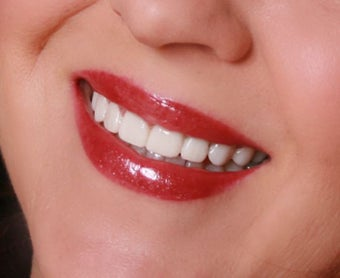 Temporary Veneers after 421768