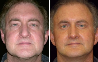 55 year old male, rhinoplasty before 629111