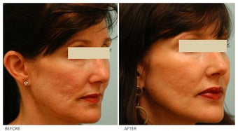 Acne Scarring Correction before 136802