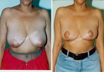Breast Reduction before 243754