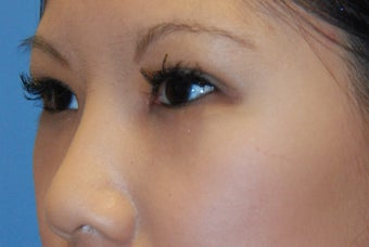Asian blepharoplasty after 199356