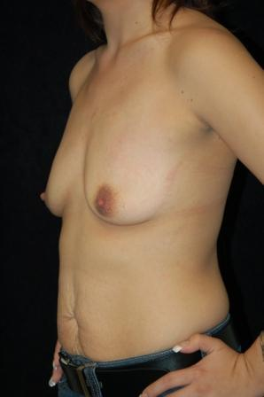 Breast augmentation 392005
