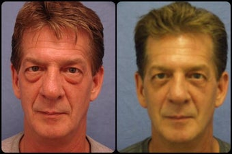 Blepharoplasty  before 164764