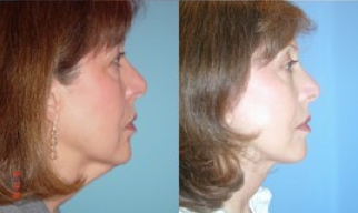 Lower Facelift, Brow Re-positioning, Upper Eyelid Surgery 366963
