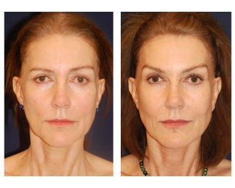 Cheek Augmentation after 415264