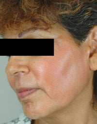 Melasma Treatment  after 120088
