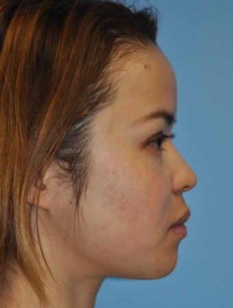 Rhinoplasty-Asian before 371839