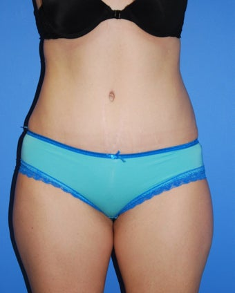 Abdominoplasty  after 343059