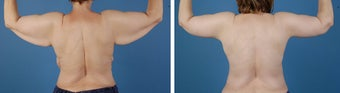 Arm lift (Brachioplasty) 303698
