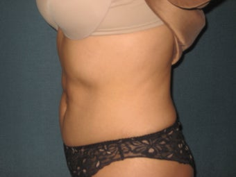 Smartlipo of the Abdomen after 461209
