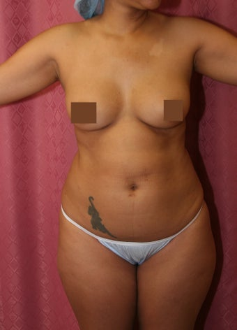liposuction before 583324