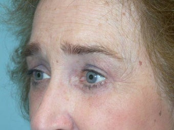 Upper and Lower Lid Blepharoplasty and Cheeklift after 148580