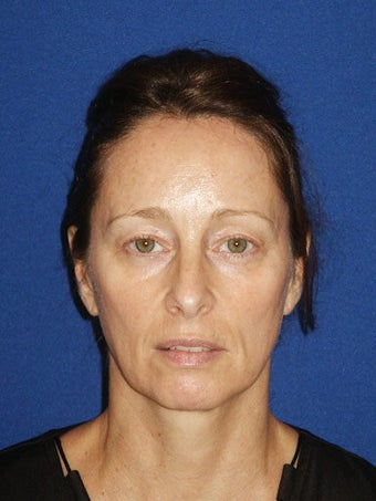 Facelift, Endoscopic Browlift, Upper and Lower Blepharoplasty before 248888