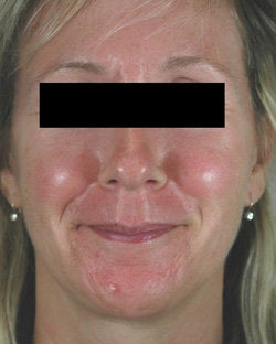 Pulsed Dye Laser Treatments for Rosacea before 104196