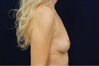 Breast Augmentation 629087
