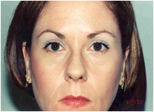 Chemical Brow Lift after 568456