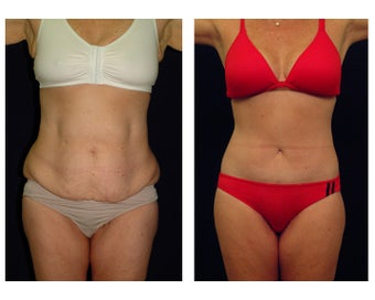 Tummy Tuck / Abdominoplasty before 54976