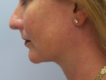 Liposuction of chin/neck area after 590877