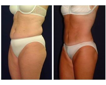 Tummy Tuck / Abdominoplasty before 55010