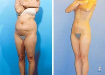 Liposuction before 636258