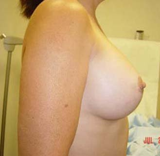 Breast Augmentation  after 131657