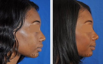 African American Rhinoplasty before 495714