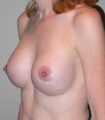 Breast Augmentation after 275701