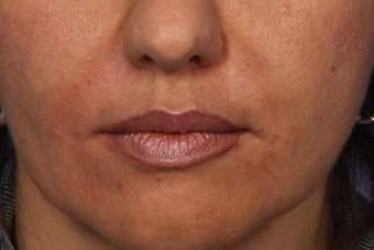 Radiesse to Smile Lines (nasolabial folds) after 308319