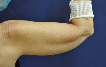 Liposuction Upper Arm before 513445